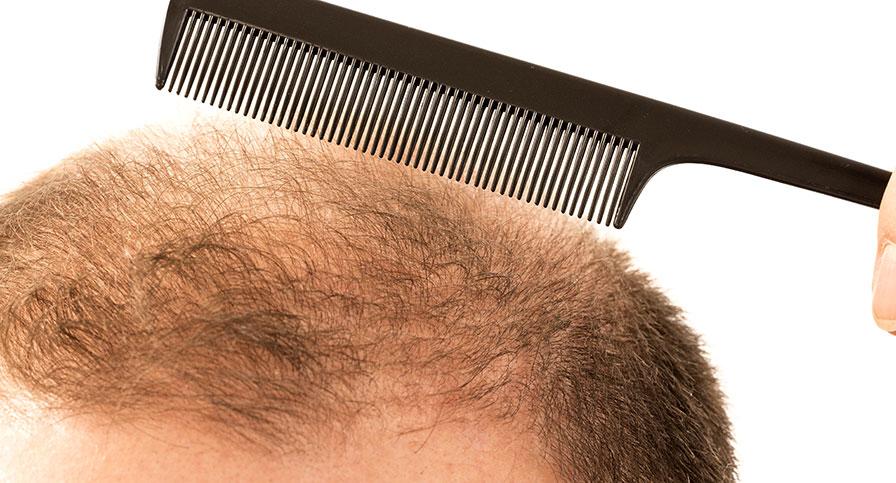 Göra hårtransplantation utomlands